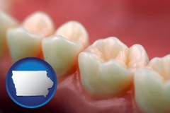 iowa map icon and teeth and gums