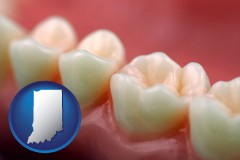 indiana map icon and teeth and gums