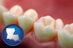 louisiana map icon and teeth and gums