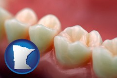 minnesota map icon and teeth and gums