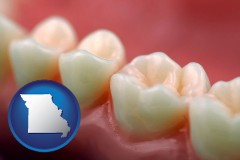 missouri map icon and teeth and gums