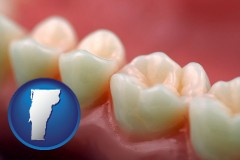 vermont map icon and teeth and gums