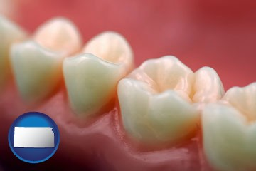 teeth and gums - with Kansas icon